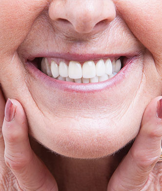 Woman with dental bridge and dentures