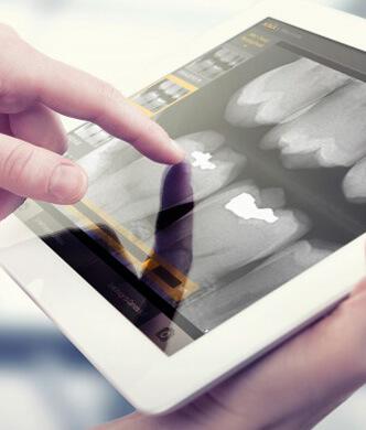 digital x-ray