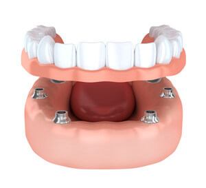 Dentures graphic