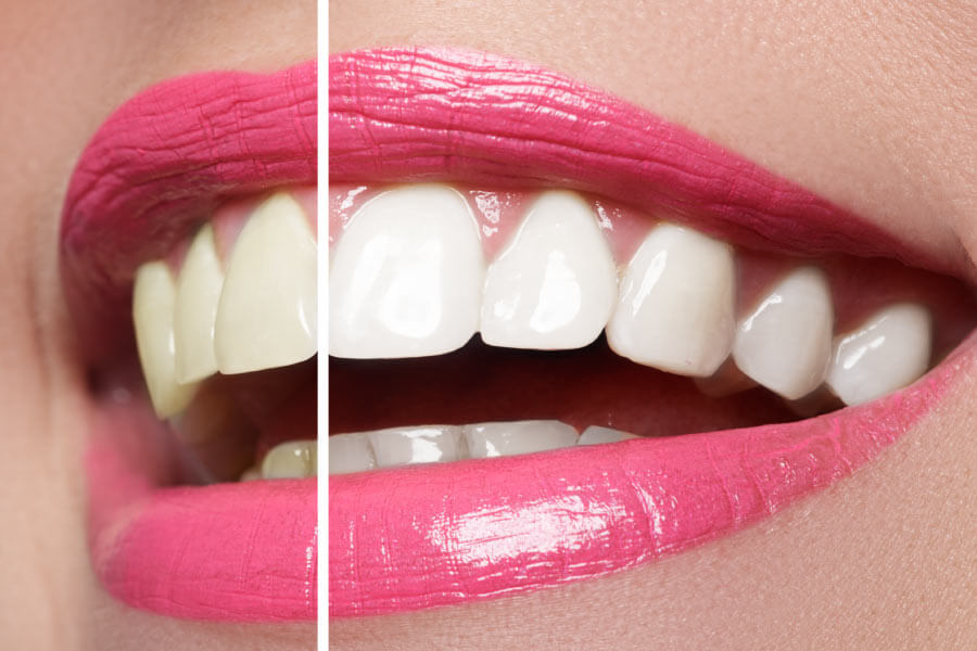 Close up of a smile brightened on half by professional dental teeth whitening.